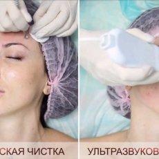 Комплексная чистка лица