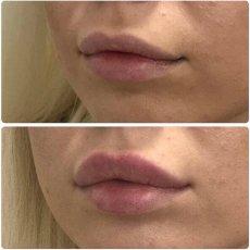 Увеличение губ Косметолог