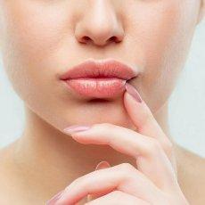 Увеличение губ / Пластика губ