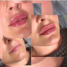 Обучение аугментации губ без иглы