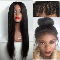 Парик система замещения волос