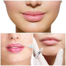 Увеличение и коррекция формы губ
